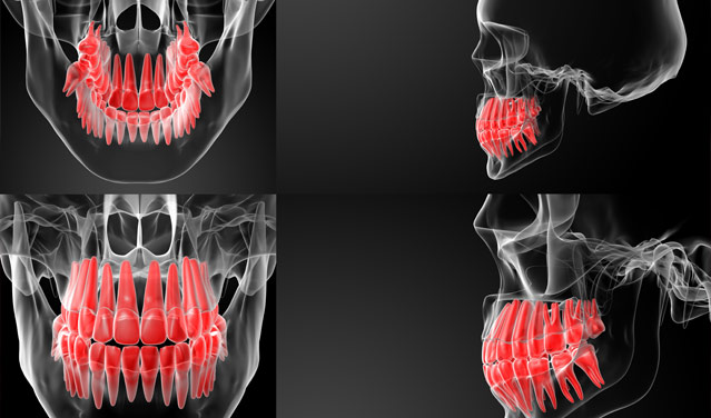 顎の骨の3D映像