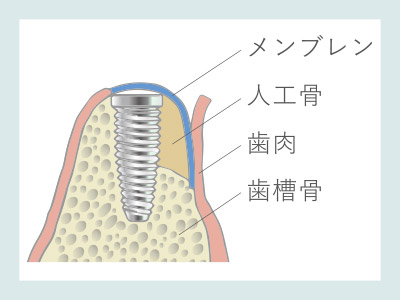 骨誘導再生法(GBR)人工骨を埋入